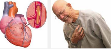 Grosir obat penyakit jantung koroner Tradisional cina ...