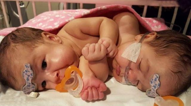 У сиамских близнецов было общее сердце и нулевые шансы на жизнь. Но их все-таки разделили и спасли жизнь!