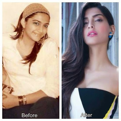 Sonam Kapoor before and after weight loss
