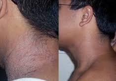 Eczema Vanished - Hayley Harragan's Natural Cure Or Bogus Treatment?