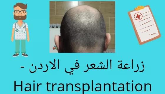 زراعة الشعر في الاردن - Hair transplantation in Jordan
