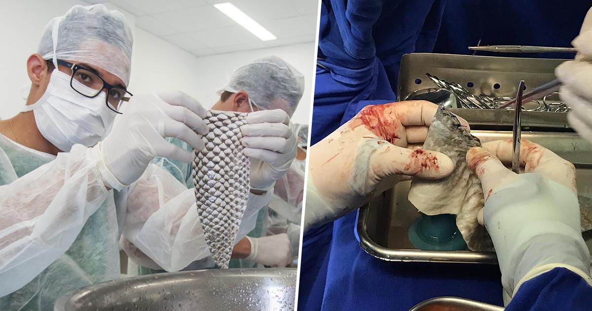 fish skin, vagina