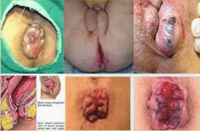 gambar wasir, gambar ambeien, gambar hemoroid, gambar anus bengkak
