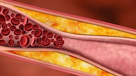 Daun kelor penurun kolesterol