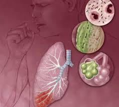 Gangguan dan Penyakit dalam Sistem pernapasan