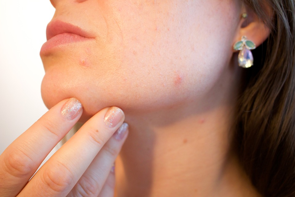 woman's face with pimples