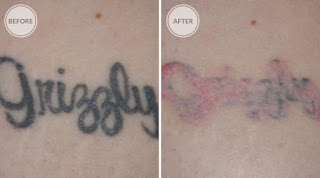 Natural tattoo removal effective ways on how to remove for I want to remove my tattoo at home