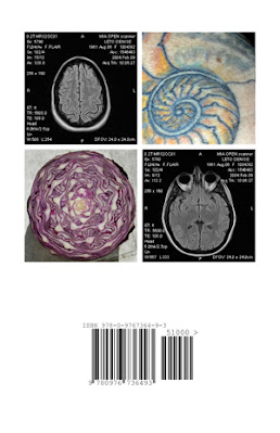 Cover image of the poetry collaboration Waveform, by Amber DiPietra and Denise Leto. White cover with 4 smaller photos grouped into a box: the upper left is a black and white MRI scan of a brain and the upper right is a close-upp of a tattoo on white skin, inked in green and gold lines;the lower left is a red cabbage cut open and the lower right is another black and white MRI scan of the same brain froma different angle.