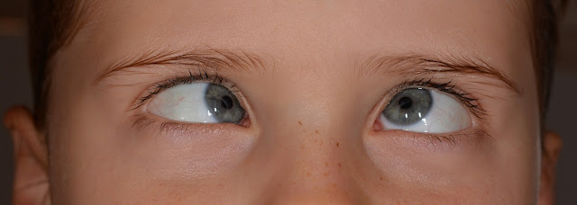 child with strabismus