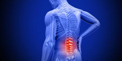 faktor-faktor-penyebab-low-back-pain-lbp-dan-alternatif-pengobatannya