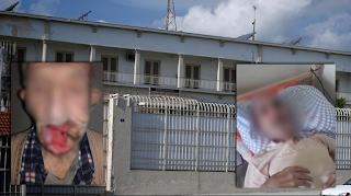 Το άθλιο πρόσωπο των φυλακών Κορυδαλλού