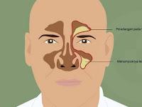 Resep Untuk Penyakit Sinusitis ala dr. Zaidul Akbar