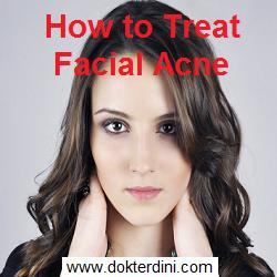 wajah berjerawat, acne