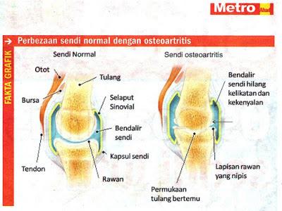 rawatan osteoarthritis