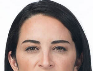 Frown lines after botox injections.