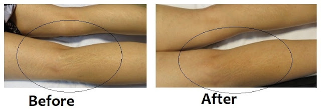 Striae alba Treatments before after