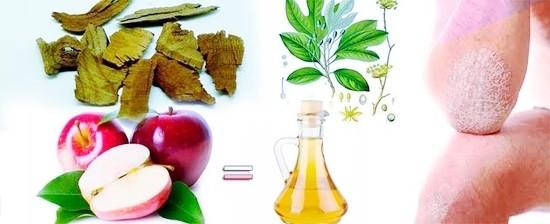 Remedios Caseros para Tratar la Psoriasis