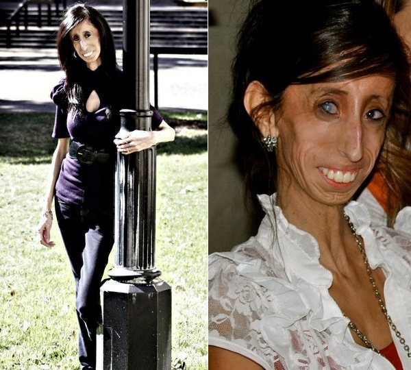 TheNextPicture: Skinniest Person in the World - Lizzie ...
