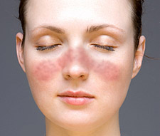 It is distinguished from other variants of lupus erythematosus that remain confined to th Symptoms And Treatment Of Systemic Lupus Erythematosus