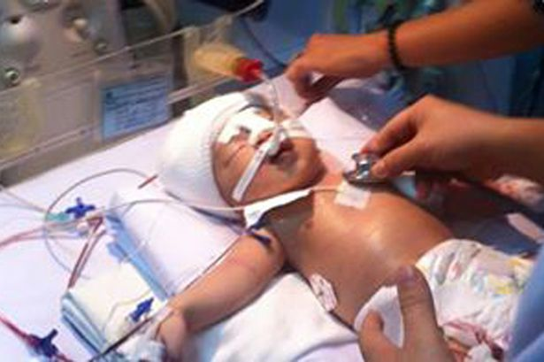 ANNABELL MBOCK'S BLOG: Sick baby stabbed in the head by ...