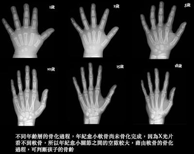 孩子的骨齡與脊椎側彎