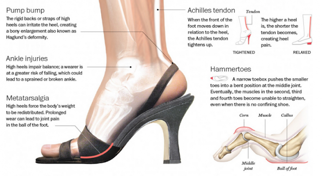 How Dangerous High Heels Really Are