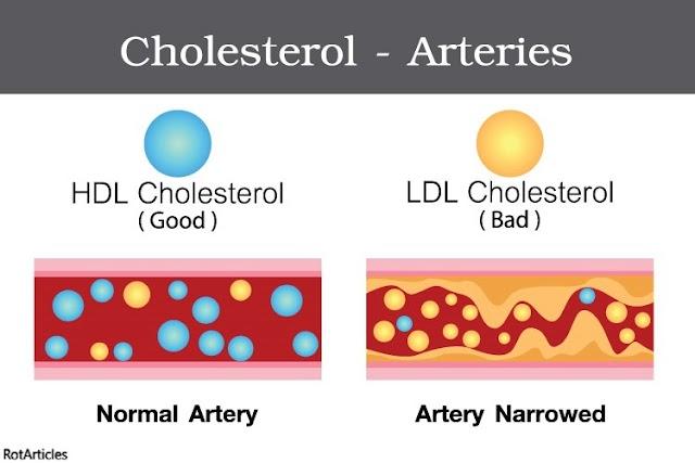 """GOOD"" and ""BAD"" CHOLESTEROL    HDL vs LDL"