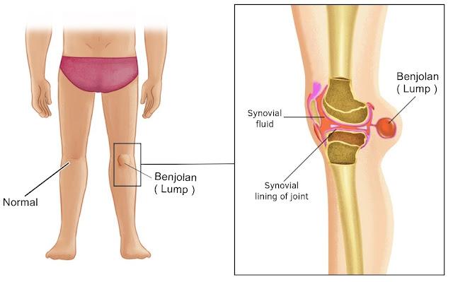 Cara Menyembuhkan Benjolan Di Belakang Lutut Tanpa Operasi