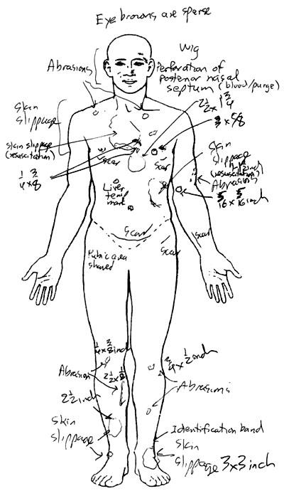 whitney houston autopsy report
