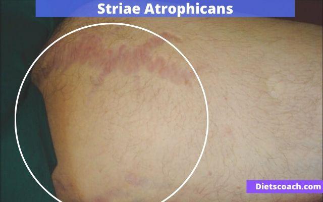 Striae Atrophicans