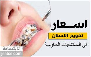 سعر تقويم الأسنان في المستشفيات الحكومية