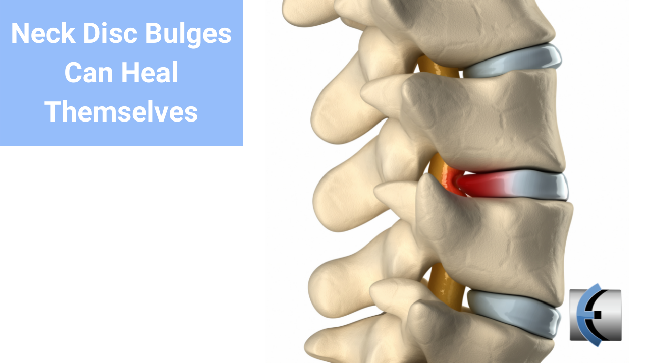 Neck Disc Bulges Can Heal Themselves - themanualtherapist.com