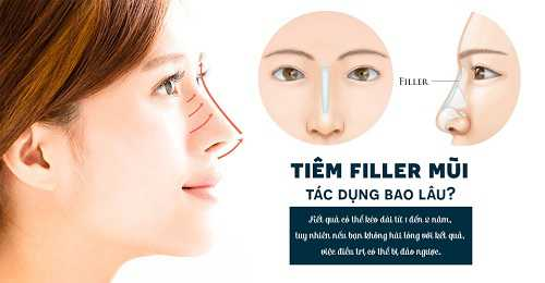 Tiêm Filler mũi được bao lâu