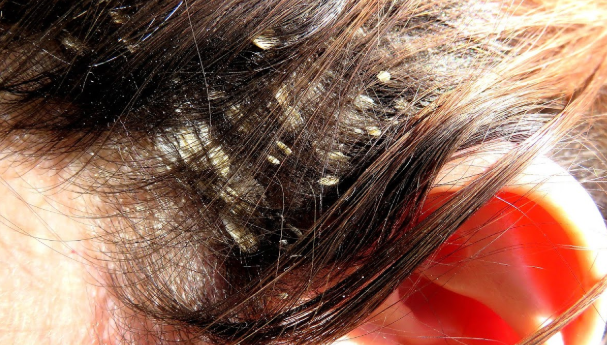 #Home Remedies To Treat Scalp Psoriasis#Health