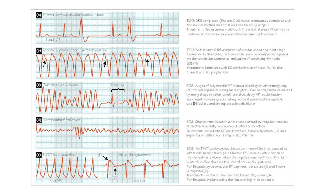 Ventricular Tachyarrhythmias And Nonpharmacological Treatment Of Arrhythmias, Ventricular tachycardia, Torsade de pointes, Ventricular fibrillation, Radiofrequency catheter ablation, Implantable defibrillators, Electronic pacemakers,
