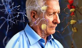 Precisamos falar sobre a Doença de Alzheimerf