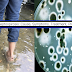 Leptospirosis: Causes, Early Symptoms, Types, Treatment and Prevention That You Should Know About