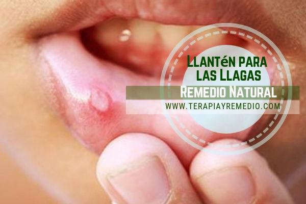 Remedio natural para las llagas con llantén mayor que pueden mejorar considerablemente el estado de estas irritaciones