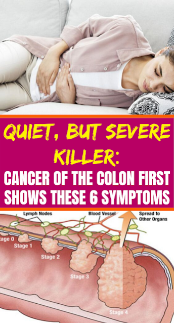 Quiet, But Severe Killer: Cancer Of The Colon First Shows These 6 Symptoms