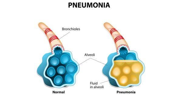 https://3.bp.blogspot.com/-BH-OKeWMrvY/WNt5Pbpx_nI/AAAAAAAAAJQ/Ef4XvmlYGnEQiJJ-E6KFEXtZ5EaGFIJ4gCLcB/s1600/pneumonia.jpg