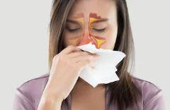 Inilah 9 Obat Alami Sinusitis yang Bisa Anda Coba