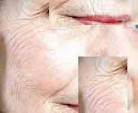 Savoir éliminer les rides du visage