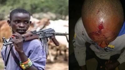 Fulani Militia Captures 5 Villages, Kidnap Teenage Girl, Dozens Killed