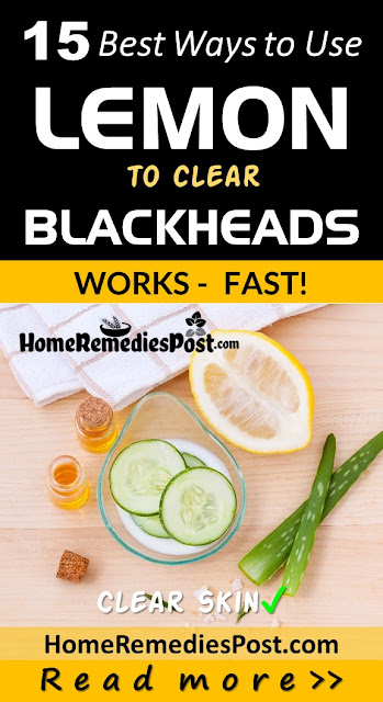 Lemon For Blackheads, How To Get Rid Of Blackheads, Home Remedies For Blackheads, How To Remove Blackheads, Blackheads Treatment, How To Treat Blackheads, How to Get Rid of Blackheads Overnight, How To Get Rid Of Blackheads Fast, Blackheads Home Remedy, How To Cure Blackheads, How To Take Blackheads Out, Blackheads Remedies, Treatment For Blackheads,