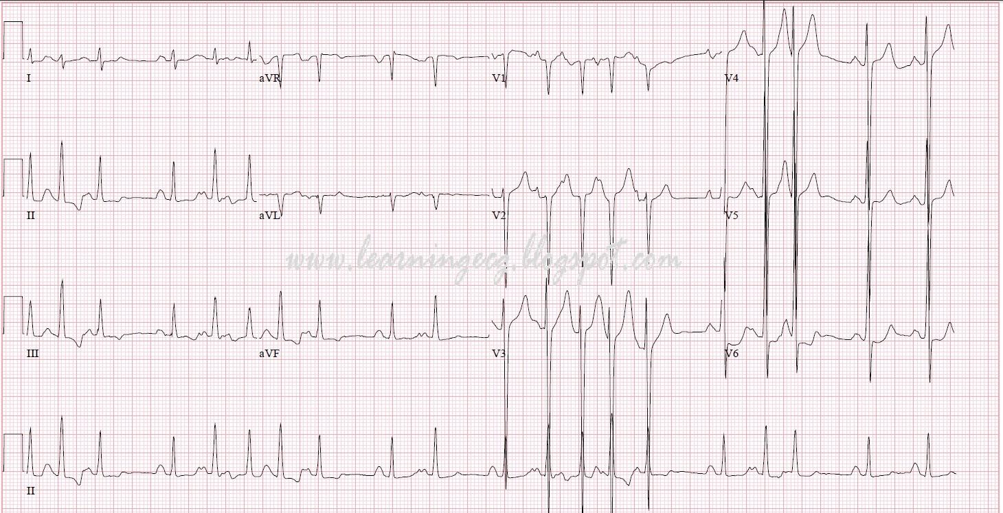 ECG Rhythms: Multifoca...