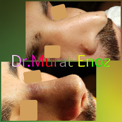 About Revision Rhinoplasty Operation