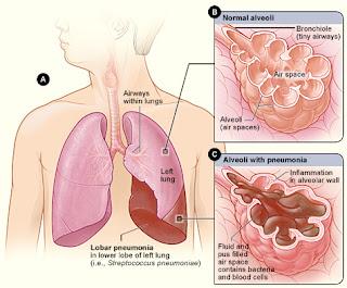 Dosis Obat TB atau TBC (Tuberkulosis)