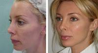 Senza botox, 15 anni in meno garantiti