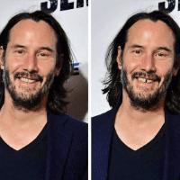 Dişlerin Yüzü Nasıl Değiştirebileceğini Gösteren 10 Fotoğraf