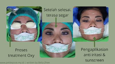 Proses treatment Oxy